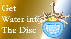 The Chiropractic TRUhealthDR uses spinal manipulation and exercise to boost the diffusion of water into the disc which supports the health of the disc.