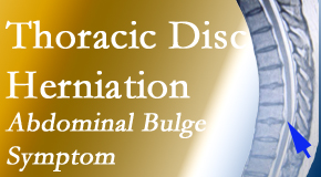 The Chiropractic TRUhealthDR treats thoracic disc herniation that for some patients prompts abdominal pain.