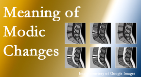 The Chiropractic TRUhealthDR sees many back pain and neck pain patients who bring their MRIs with them to the office. Modic changes are often seen.