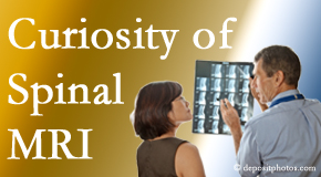 Colorado Springs MRIs for spinal stenosis may be revealing…or confusing.