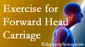 Colorado Springs chiropractic treatment of forward head carriage is two-fold: manipulation and exercise.