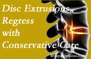 Colorado Springs chiropractic care of extruded discs may benefit regression of them and improve your quality of life.